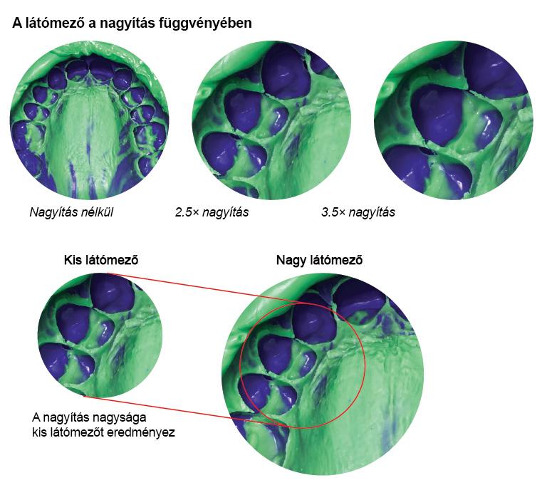 Diagnosztika perioptix nagyitas abra